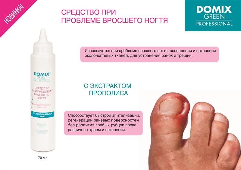 Препараты от вросшего ногтя на ноге